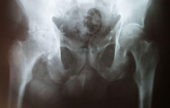Coxarthrose D évoluée, mais assez peu symptomatique