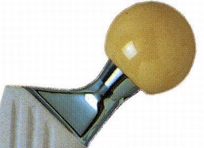 Tête Céramique d'Alumine